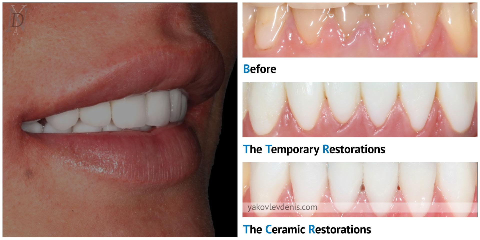Эстетическое лечение керамическими реставрациями 10