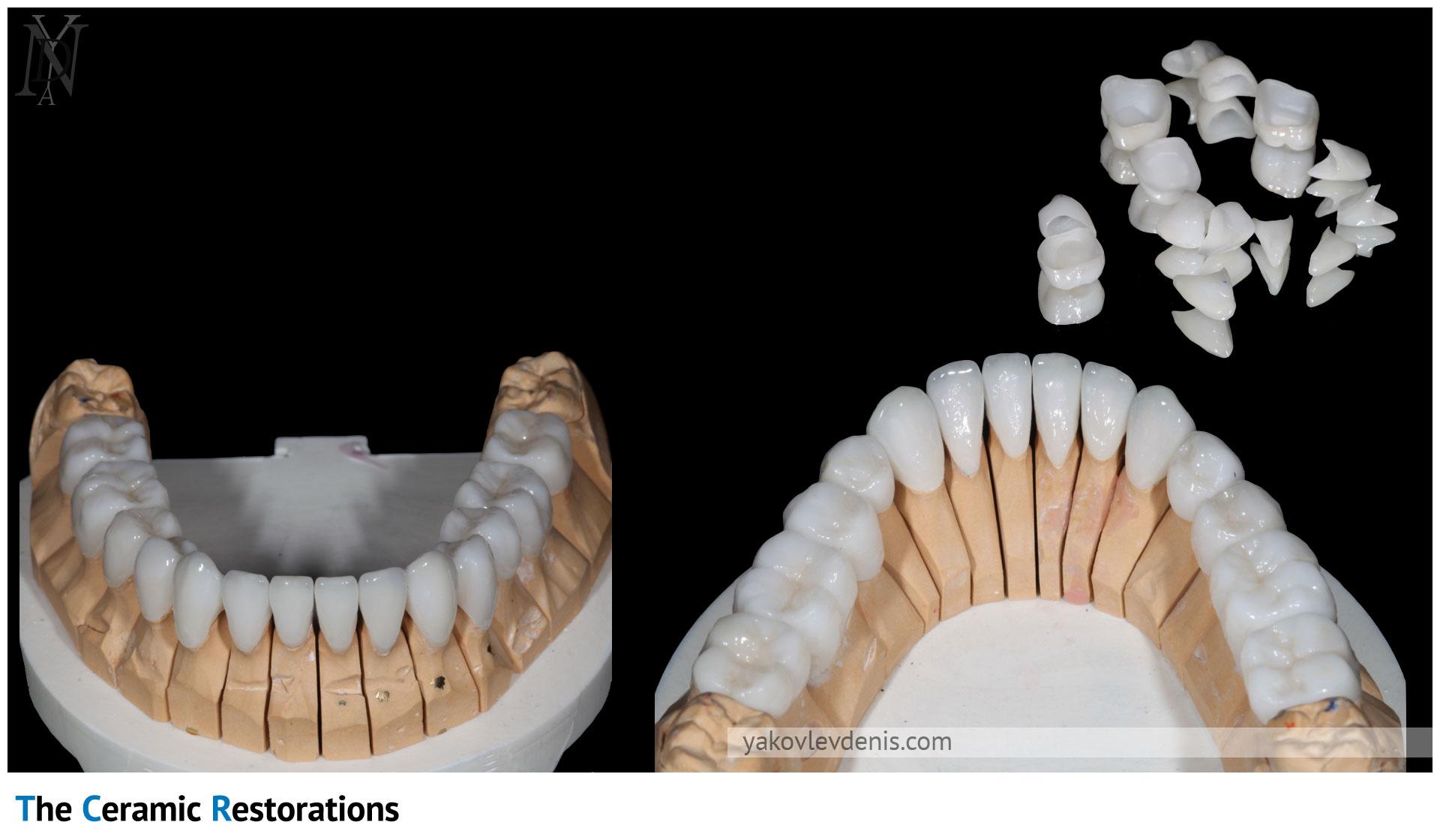 Эстетическое лечение керамическими реставрациями 11