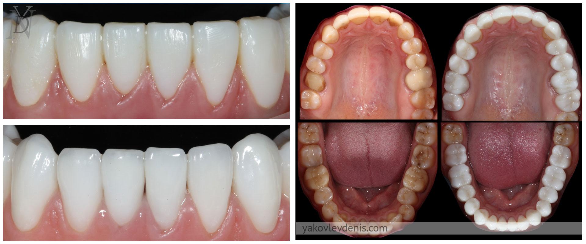 Эстетическое лечение керамическими реставрациями 15