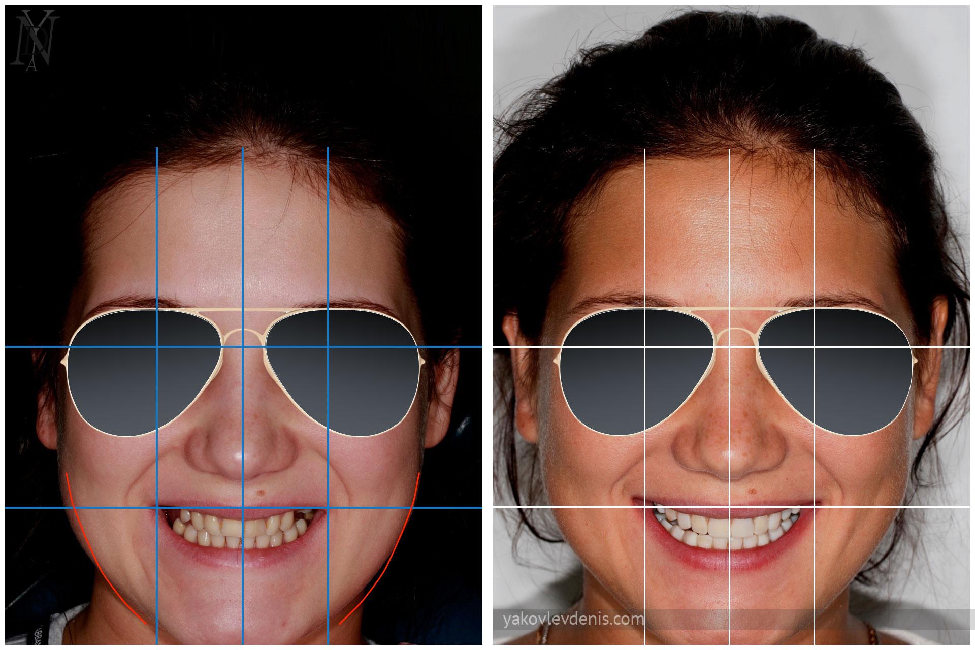 Эволюция-улыбки-за-счёт-виниров-08