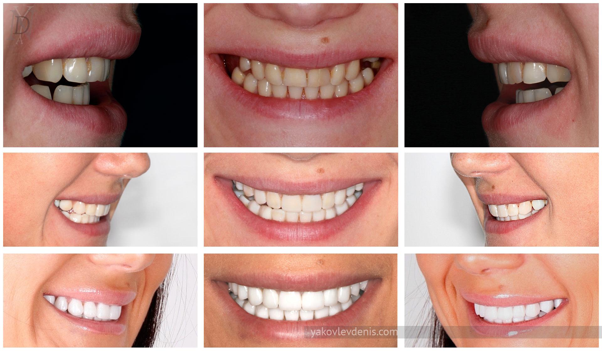 использование виниров при отсутствии зуба