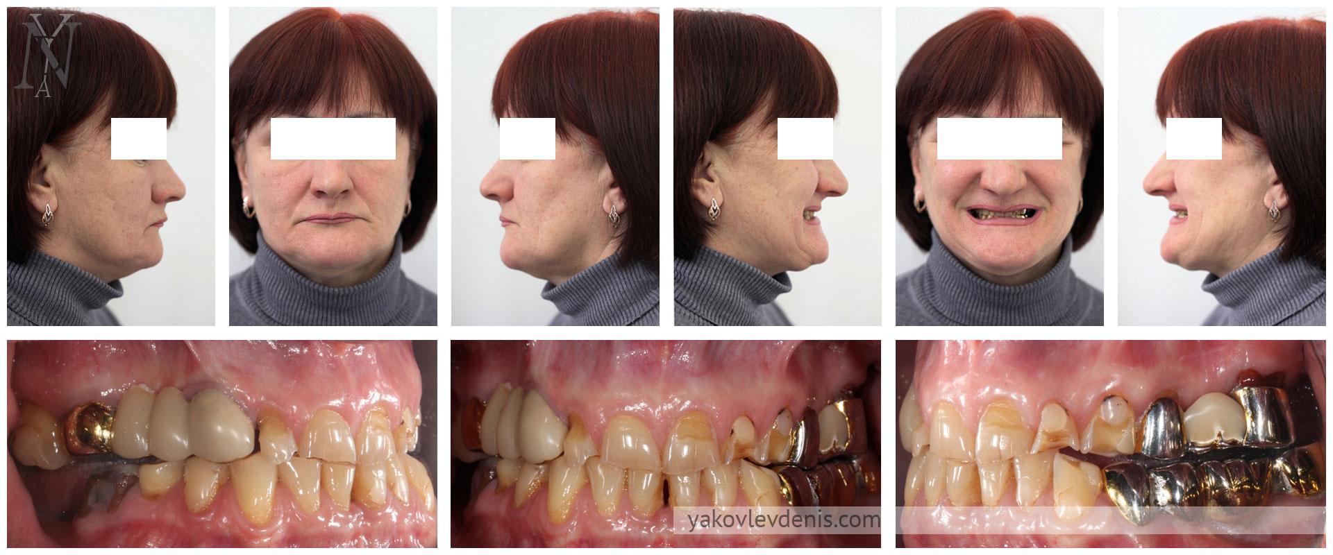 Комплексное-восстановление-зубных-рядов-01