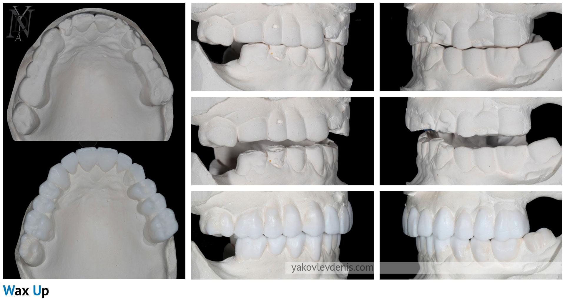 Комплексное-восстановление-зубных-рядов-02