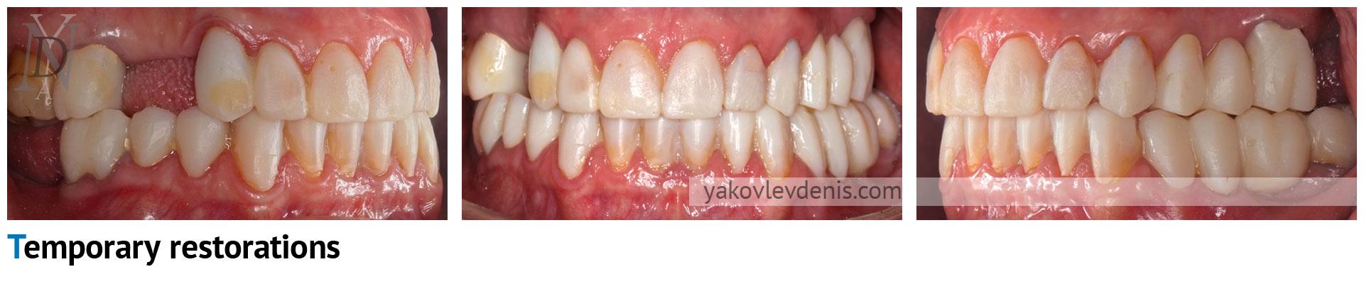 Комплексное-восстановление-зубных-рядов-05