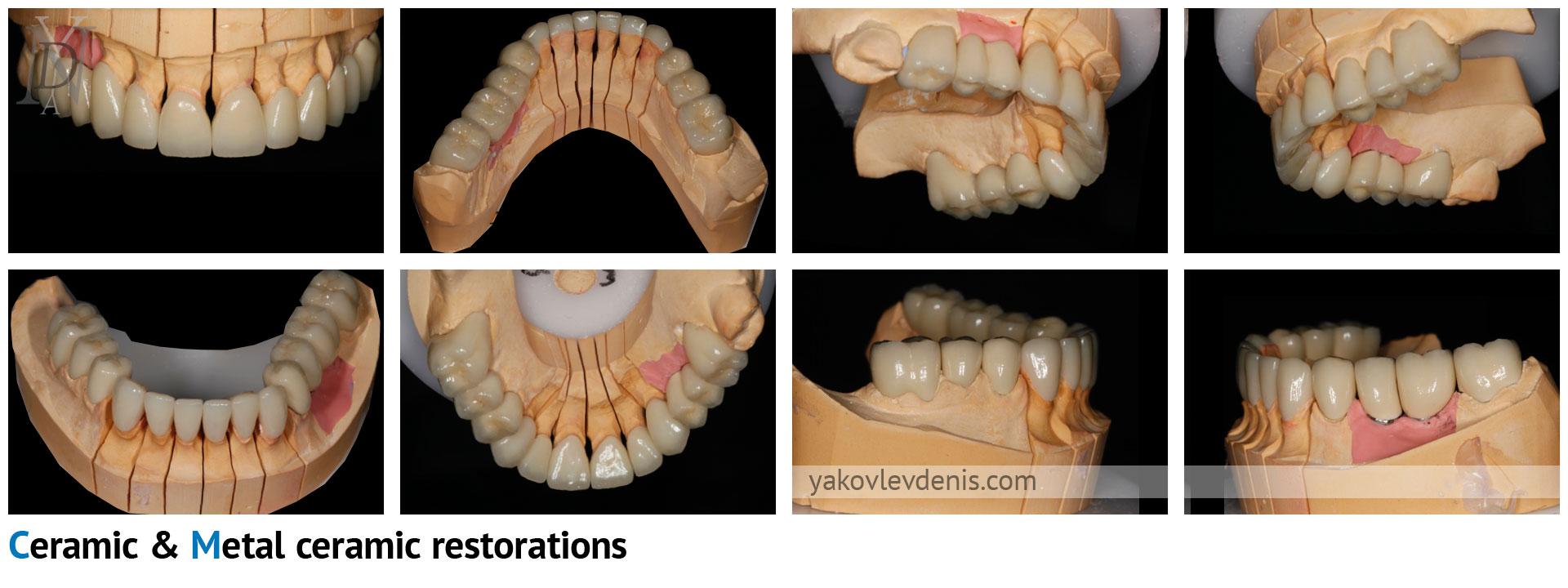 Комплексное-восстановление-зубных-рядов-06