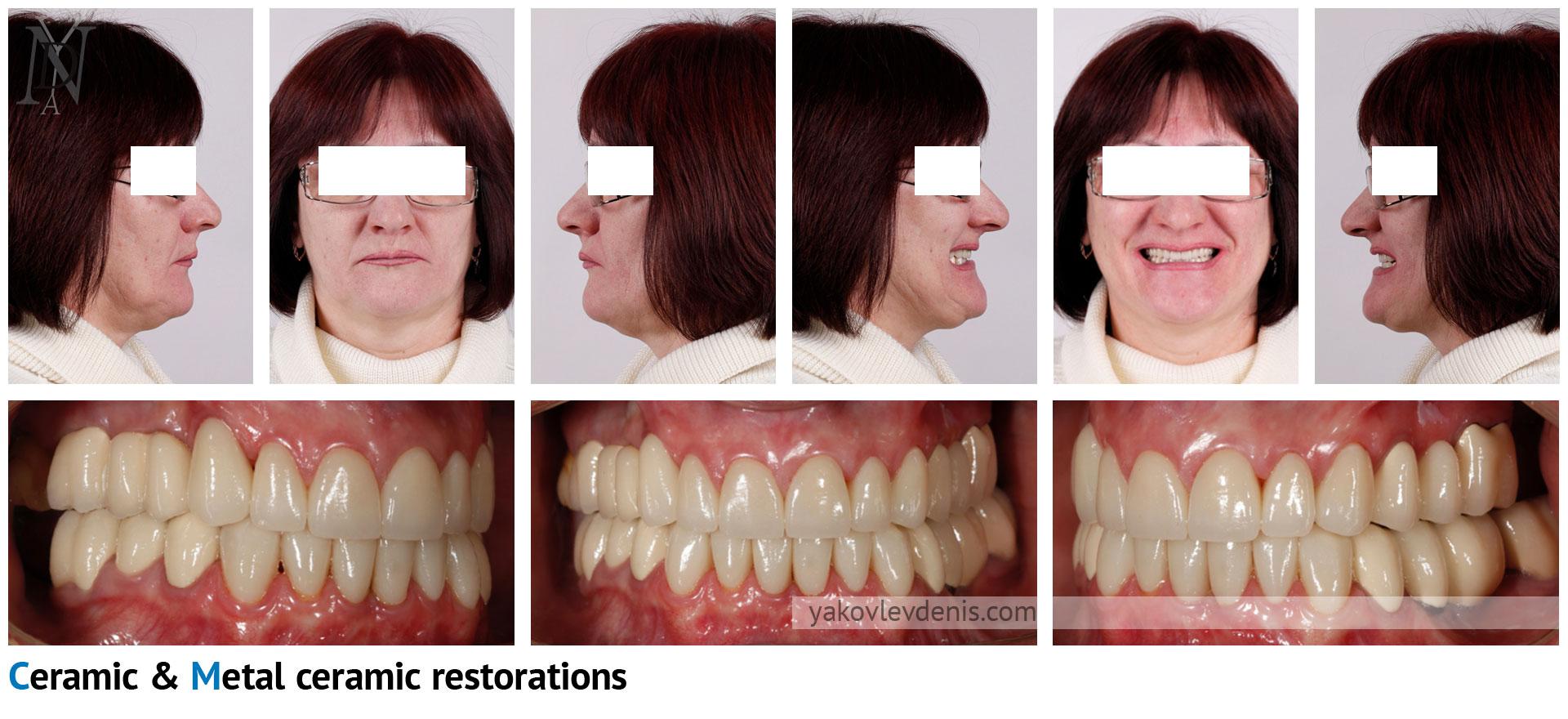 Комплексное-восстановление-зубных-рядов-08