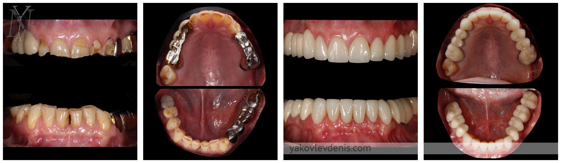 Комплексное-восстановление-зубных-рядов-09