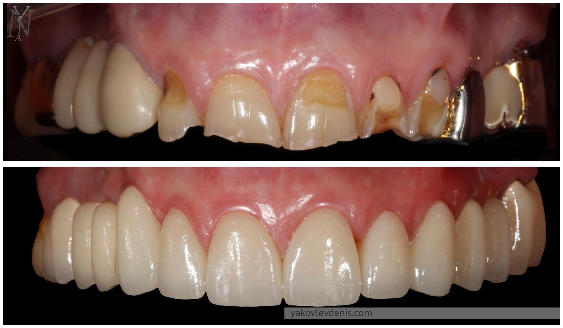 Комплексное-восстановление-зубных-рядов-11