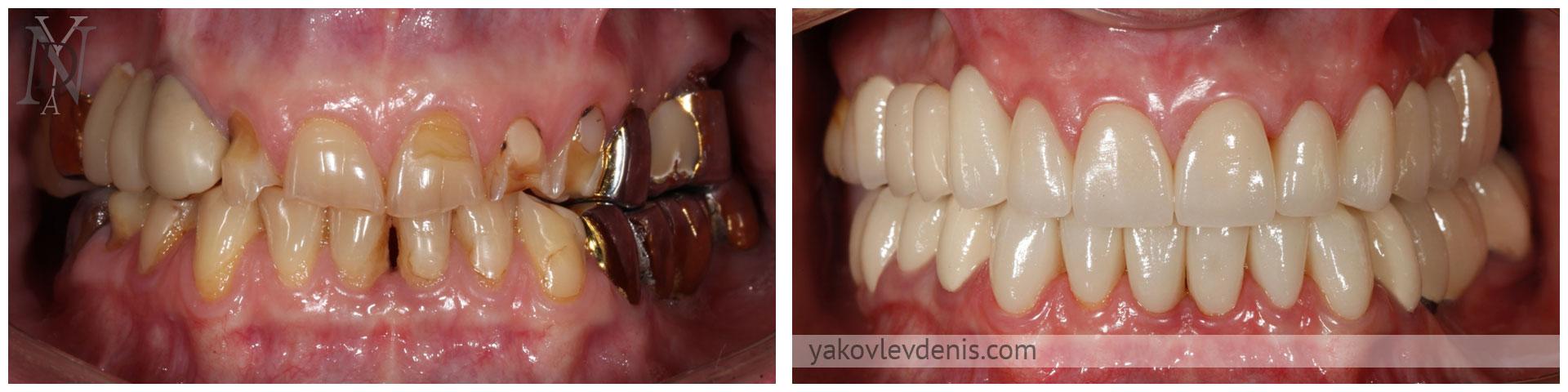 Комплексное-восстановление-зубных-рядов-12