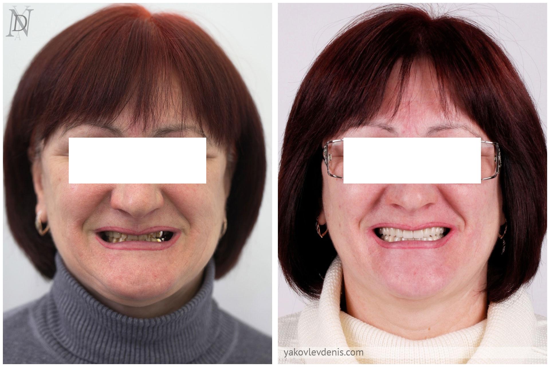 Комплексное-восстановление-зубных-рядов-14